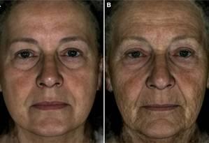 Apenas ilustrativas, as imagens mostram o rosto médio, criado em computador, de 22 mulheres de 70 anos analisadas no estudo. Na primeira versão, o envelhecimento foi suavizado, fazendo-a parecer ter 60 anos. Na segunda, com muitas marcas, ela adquire aparência de 80. Entre as mudanças, rugas e lábios mais finos Foto: Divulgação/Fan Liu