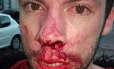 Vítima de homofobia, o estudante de publicidade Jonathan Alves sofreu fratura no nariz em Campo Grande, no domingo Foto: Reprodução