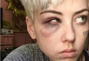 Illma Gore sofreu agressão de apoiadores de Trump após pintar magnata nu Foto: Instagram / Reprodução
