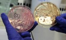 Placas com a bactéria E. coli, em um laboratório da Alemanha Foto: FABIAN BIMMER / REUTERS