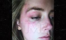 Hematomas no rosto de Amber Heard Foto: TMZ