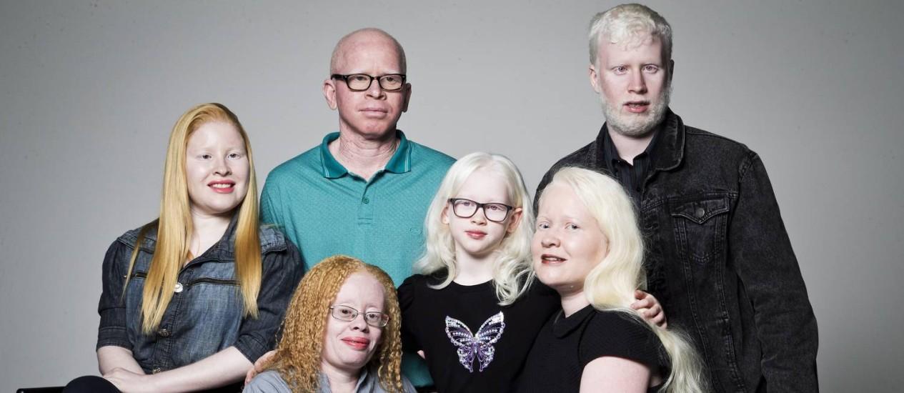 Integrantes do Grupo de Pessoas com Albinismo do Rio de Janeiro, criado em 2013. Um dos projetos do grupo é criar um censo de albinos no Brasil Foto: Guito Moreto / Agência O Globo