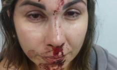 Menino publica no Facebook foto de mãe com rosto ferido e diz que pai foi o agressor Foto: Reprodução/Facebook