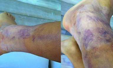 Alexis Sanchéz, atacante do Chile, exibe tornozelo muito inchado após a final da Copa América Centenário Foto: Reprodução/Twitter