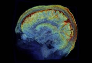 Ressonância magnética de um cérebro: risco de derrame cairia quase pela metade com controle da hipertensão Foto: Divulgação