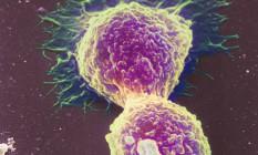 Imagem mostra célula de câncer de mama se multiplicando Foto: Latinstock / Science Photo Library