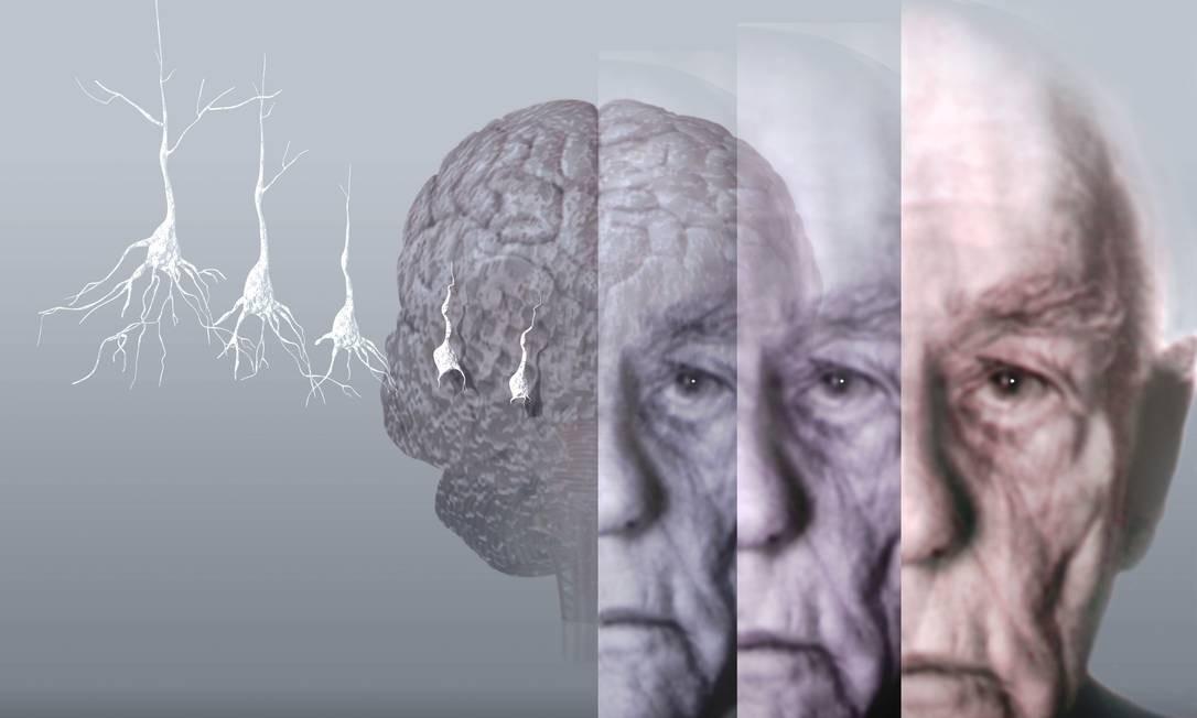 Exames não invasivos podem ser uma forma fácil e barata de diagnosticar precocemente o mal de Alzheimer, provocado pela progressiva morte de neurônios no cérebro Foto: / Latinstock