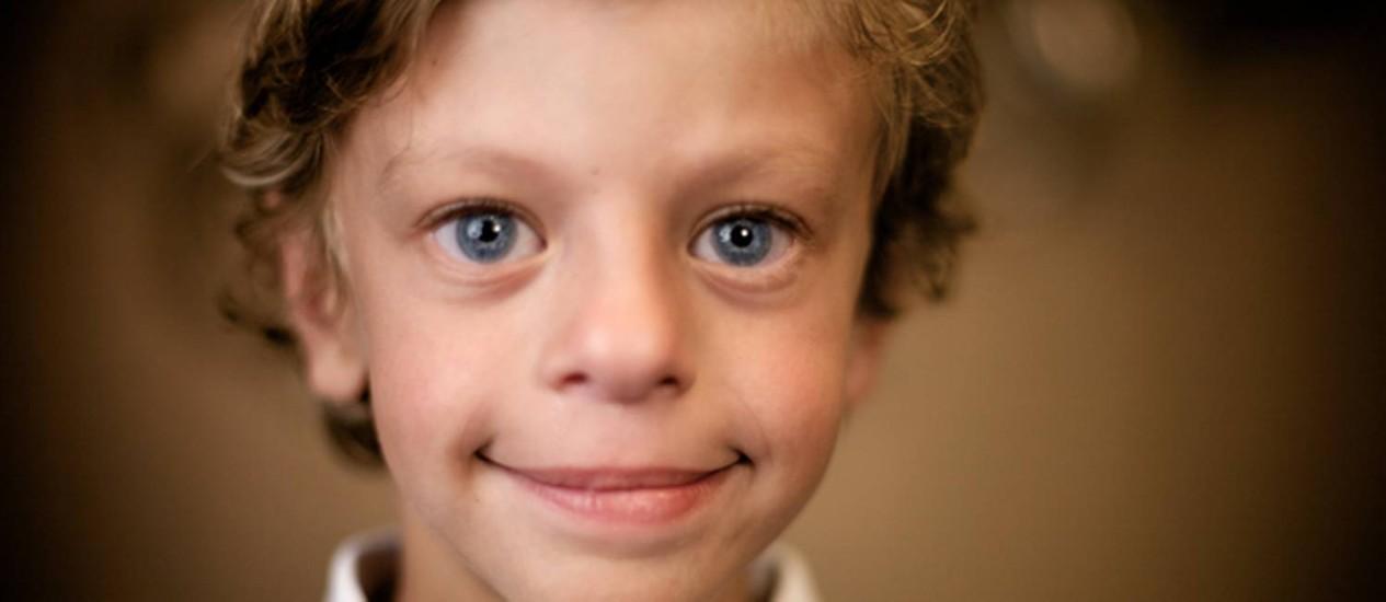 """Reprodução Foto: Criança retratada no filme """"Embraceable"""", de 2011: afabilidade e dismorfia facial são características da síndrome de Williams"""