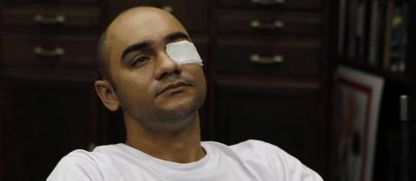 O fotógrafo Sérgio Andrade da Silva, da agência FuturaPress, foi atingido por bala de borracha disparada por policiais na manifestação do Movimento Passe Livre Foto: Michel Filho / Agência O Globo