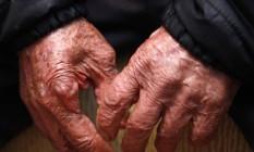 Estudo explica como o melanoma se espalha para outros órgãos do corpo Foto: Pablo Jacob / Agência O Globo