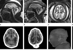 Exames mostram os cérebros de duas gêmeas, que foram afetadas em graus diferentes pelo vírus zika Foto: Reprodução