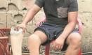 Holmes teve que amputar um pé Foto: Divulgação/CICV