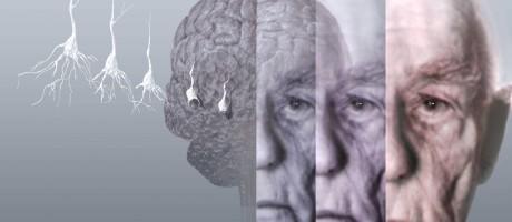 Proteína amiloide-beta, alvo da terapia, atua como um 'freio' na conexão entre os neurônios e acaba provocando a morte das células cerebrais Foto: Latinstock