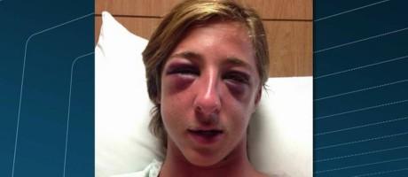 Uhane Barthel, de 22 anos, foi agredido em Vargem Pequena Foto: Reprodução da TV