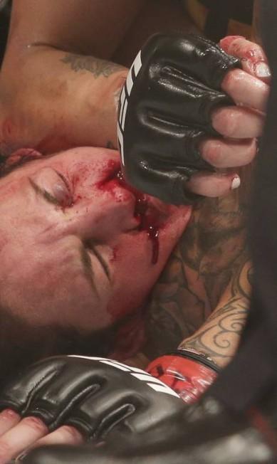 Lina Lansberg sangra abundantemente no nariz, atingida por seguidos socos de Cris Cyborg no UFC Brasília Eraldo Peres / AP