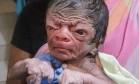 Menino 'Benjamin Button' nasce em Bangladesh Foto: Reprodução/Twitter