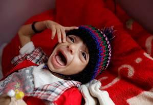 Um menino chora no hospital de cuidados intensivos a desnutridos em Sanaa Foto: KHALED ABDULLAH / Agência O Globo