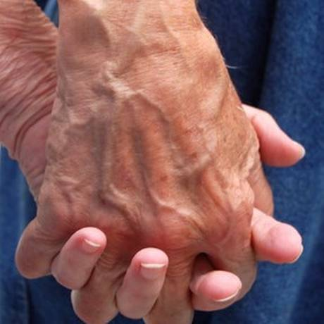 Dano progressivo no cérebro dos pacientes provoca tremores Foto: Free Images