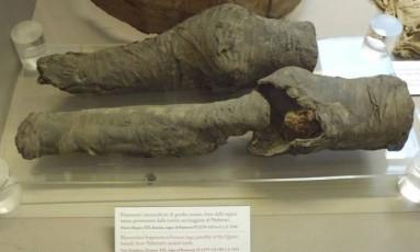 Joelhos mumificados têm altas probabilidades de serem da rainha Nefertari, do Egito Antigo Foto: Joann Fletcher/Universidade de York
