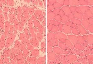 Do lado esquerdo, células do músculo de um dos camundongos antes da reprogramação parcial. Do lado direito, células do músculo do mesmo animal depois do tratamento Foto: Juan Carlos Izpisua Belmonte Lab/Salk Institute