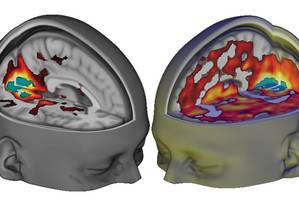 Imagem mostra ativação de áreas do cérebro provocada por psicodélicos Foto: DIVULGAÇÃO