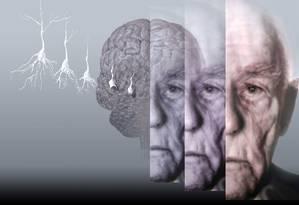 Experimento mostrou que proteína livra neurônios de substãncias que fazem com que eles eventualmente morram, característica comum de diversas doenças neurodegenerativas Foto: Latinstock