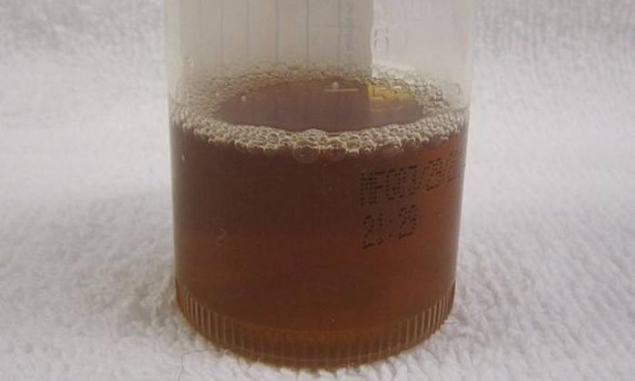 Resultado de imagem para urina preta
