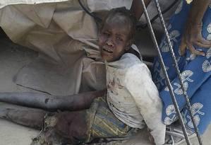 Foto cedida pelo Médicos Sem Fronteira (MSF) mostra uma criança ferida depois do bombardeio ao campo de refugiados Foto: HANDOUT / AFP
