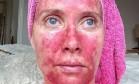 Viciada em bronzeamento mostra terrível resultado de abuso do sol Foto: Reprodução/Instagram