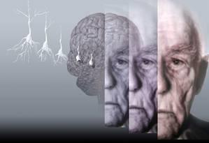 Proteína defeituosa se acumula nos neurônios e leva à morte as células cerebrais, provocando demência Foto: Latinstock