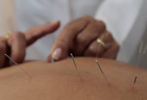 Acupuntura é uma das técnica usadas na medicina tradicional chinesa Foto: Fernanda Dias