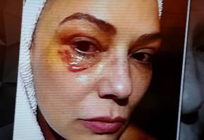 Luiza Brunet mostra olho machucado após alegar ter sofrido agressão de ex-companheiro Foto: Reprodução