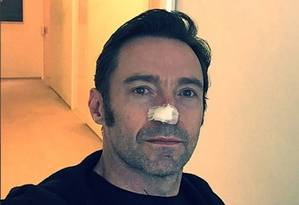 Hugh Jackman faz novo tratamento contra o câncer de pele Foto: Reprodução