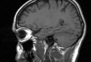 Volume total do cérebro e de cinco de suas zonas é menor em pessoas diagnosticadas com a síndrome Foto: Free Images