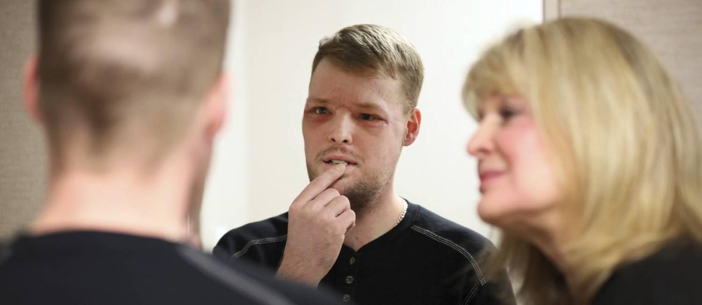 No final de janeiro, Sandness viu o seu rosto pela primeira vez após transplante Foto: Charlie Neibergall / AP