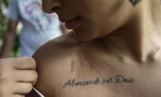 Alice mostra arranhões no ombro: ela foi atacada por um bando, que levou seu celular no Bloco da Preta Foto: Agência O Globo / Alexandre Cassiano