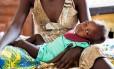 No Sudão do Sul, a bebê Elizabeth sofre de severa má nutrição com apenas 18 meses de vida Foto: © UNICEF/UN053447/Gonzalez Farr / © UNICEF/UN053447/Gonzalez Farr