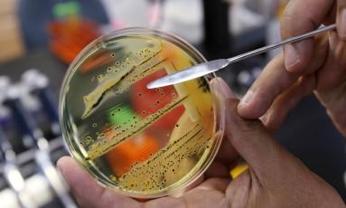 Médico aponta para o crescimeno de salmonella, da família Enterobacteriaceae, em laboratório Foto: Elaine Thompson / ASSOCIATED PRESS