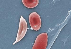 Imagem de microscópio mostra células falciformes ao lado de células normais Foto: Janice Haney Carr / AP