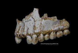 Imagem da mandíbula superior de fóssil de neandertal cuja placa dental foi analisada pelos pesquisadores: sinais de consumo do fungo 'Penicillium' e de pedaços de álamo que continham ácido salicílico, composto similar ao ingrediente ativo da aspirina Foto: AP/Paleoanthropology Group/MNCN-CSIC