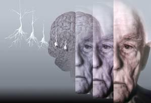 Dados foram analisados a partir de autópsias do cérebro de 1.904 pessoas sem doença aparente Foto: Arquivo
