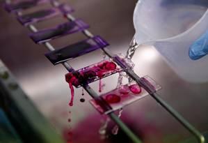 Técnico analisa amostra de sangue em teste para diagnóstico da tuberculose num laboratório em Lima, no Peru Foto: Mariana Bazo / REUTERS