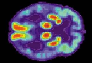 Cientistas encontraram medicamentos capazes de prevenir danos às células cerebrais em camundongos Foto: DIVULGAÇÃO/Universidade de Cambridge