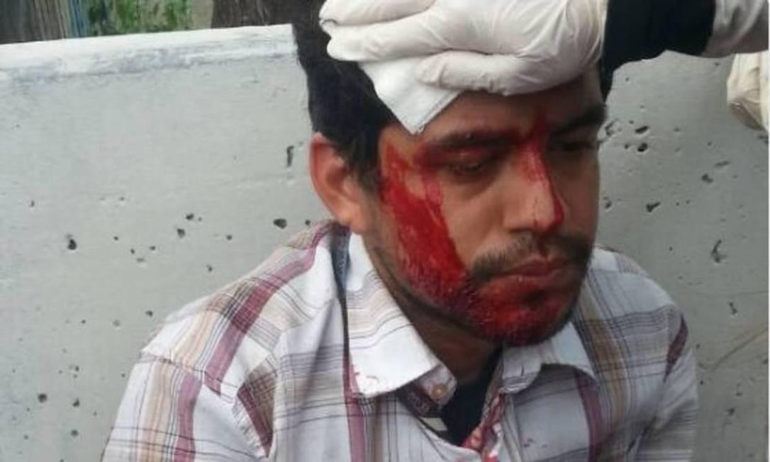 Repórter do 'El Nacional' ficou ferido em manifestação contra Maduro Foto: 26/04/2017 / Reprodução/El Nacional