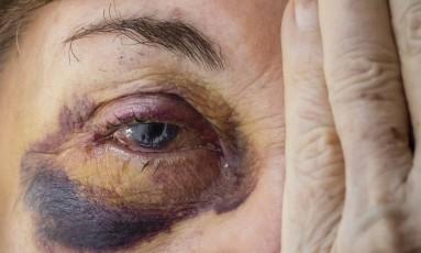 Senhora de 76 anos foi agredida por ladrões em Ipanema Foto: Fernando Lemos / Agência O Globo