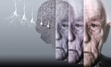 Alzheimer vem sendo muito estudado nos últimos anos Foto: Latinstock