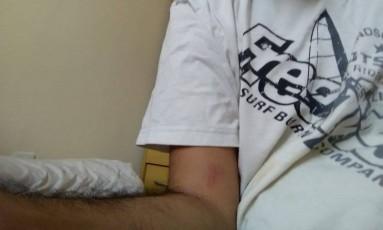 Breno mostra hematoma em seu braço após tentar se defender de agressões Foto: Acervo Pessoal