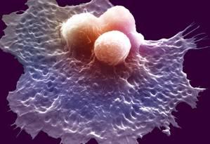Células cancerosas no sangue Foto: Latinstock/Science VU/W. J. Johnson