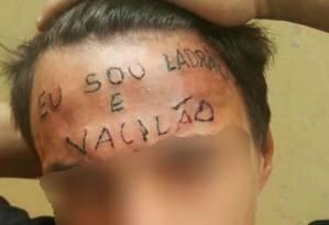 Jovem tem a testa tatuada depois de supostamente tentar furtar uma bicicleta Foto: Reprodução
