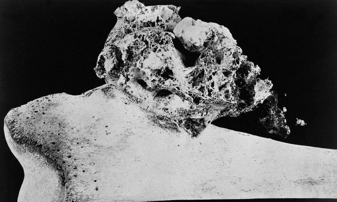 Osso da perna afetado pelo osteossarcoma Foto: Wellcome Library